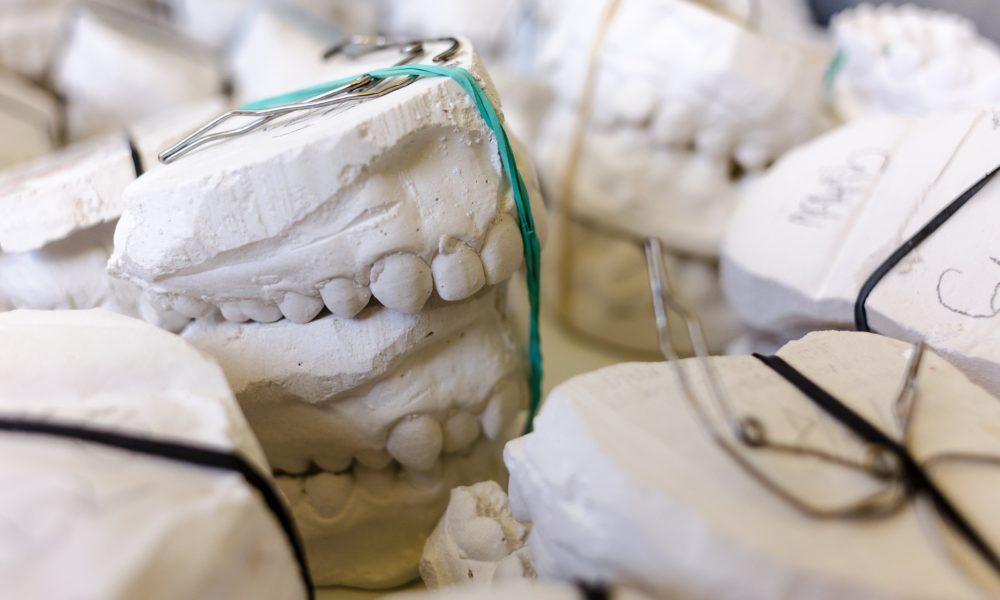 Złe podejście odżywiania się to większe ubytki w zębach natomiast dodatkowo ich zgubę